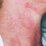 laseroterapia gdynia